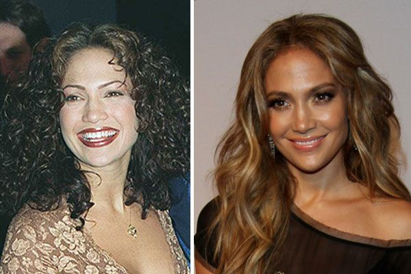 Jennifer Lopez Plastic Surgery Before & After Nose Job Boob Job ...