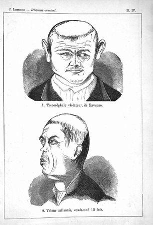 Cesare Lombroso, L'homme criminel. Étude anthropologique et médico-légale, Paris, F. Alcan, 1887, Planche IV, « Violeur de Ravenne et voleur milanais », Collection Particulière.