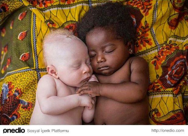 Kongo Kinshasa'da kuzeniyle beraber mutlu bir şekilde uyuyan 3 haftalık Albino bebek