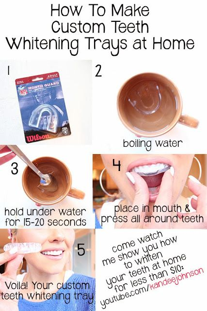 How to make your own custom teeth whitening trays at home ...