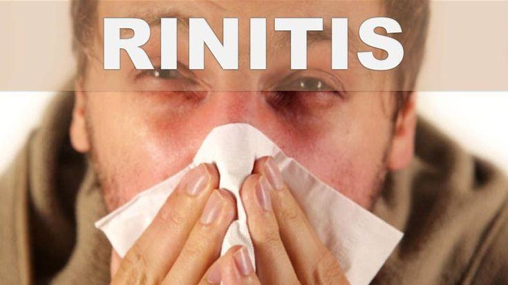 Rinitis: Prevención, diagnóstico y tratamiento.