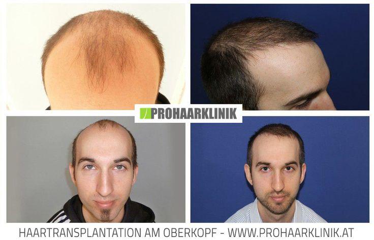 Haarimplantation Vorher Nachher  http://www.prohaarklinik.at/haartransplantation-vorher-nachher-bilder/
