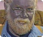 Paul Karason was all over the news in 2008 after having developed a condition known as argyria, which is a permanent blue-ing of the skin caused by the ingestion of too many silver salts and proteins. Karason had been making his own silver mixture at home using salts and extended-length electrolysis to generate a silver chloride solution with large silver particles. In short, this high-risk blend, which is far different from the majority of ionic silver and silver colloid solutions sold at…