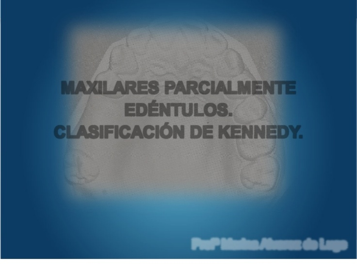CLASIFICACION DE KENNEDY - PPT: Prótesi Parcial, Parcial Removal