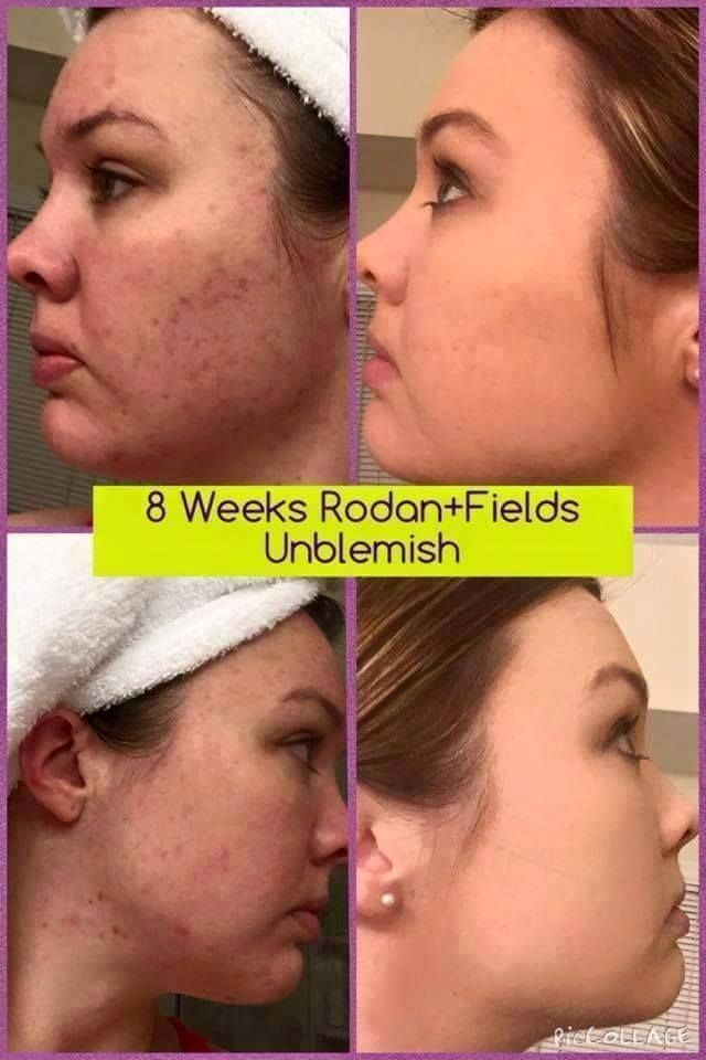 "Lacey Johnson, Rodan + Fields consultant shares her results using UNBLEMISH for 2 months…no filter and no make-up! This is Lacey's own words: ""Honestly, I don't really have words to explain how relieved, excited, & blown away I am by my results. I was very hesitant about posting my awful ""before"" photo. My ""after"" photos were taken yesterday. No longer am I caking on pounds of makeup.""  https://keliasson.myrandf.com"