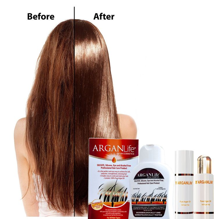 Organic Arganlife Hair Fall Shampoo The organic argan life shampoo is very effective in reducing hair loss completely without any side effects. It is true that organic life argan shampoo might not give you the results instantly but it will be effective from the root when you are using it regularly. #arganlife #arganlifeproducts