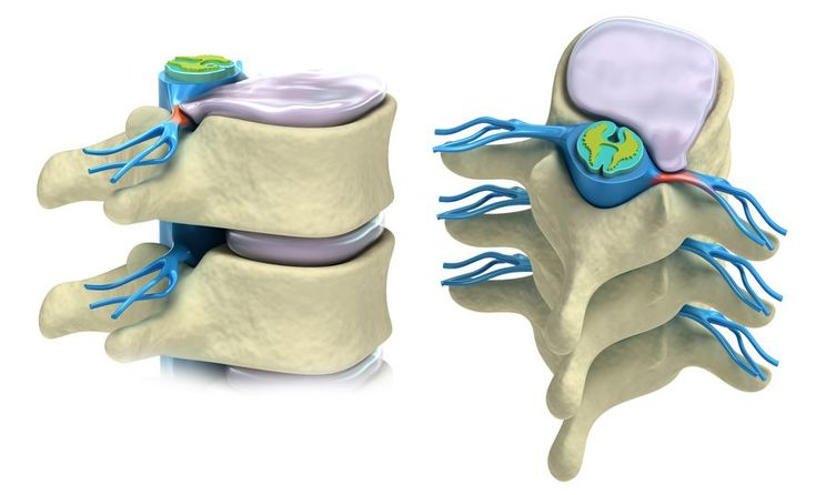Intervertebral discs are the pillow-like cushions in between your vertebrae. They are your spine?s shock-absorbing system, helping you move more easily. See illustrations of what your discs look like and learn more about what they do for your spine.