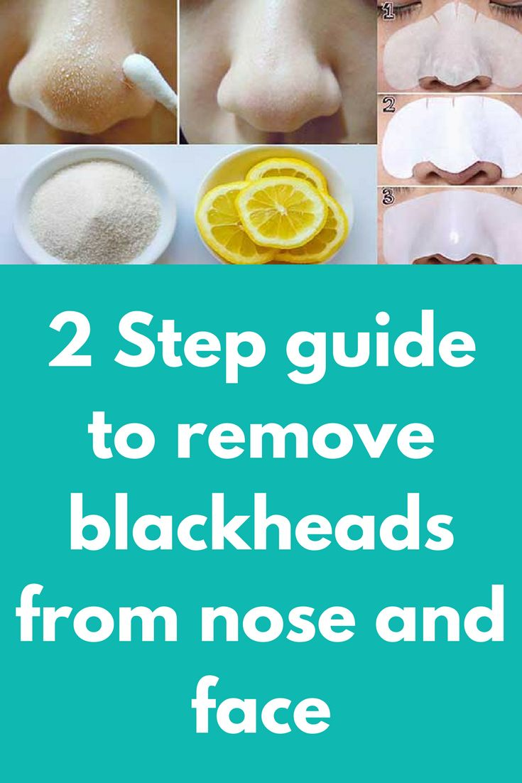 2 Step guide to remove blackheads from nose and face Everyone of us want silky and clear skin without irritating blackheads and expanded pores. When trying to remove the blackheads we do the impossible, buy expensive exfoliators and creams, and practicing expensive cosmetic treatments, only to realize that they return back. Step 1: Boil water and let that water cool down for a while. Pour …