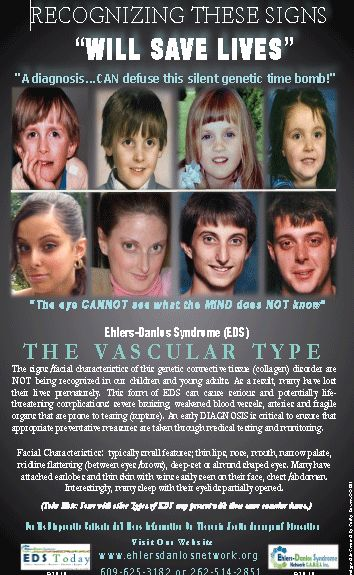 Ehlers-Danlos Vascular pictures of facial features | Click the image below to download a poster from EDS Network CARES, Inc ...