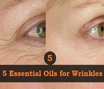 5 Essential Oils for Wrinkles