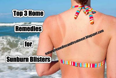 Top 3 Home Remedies Sunburn Blisters
