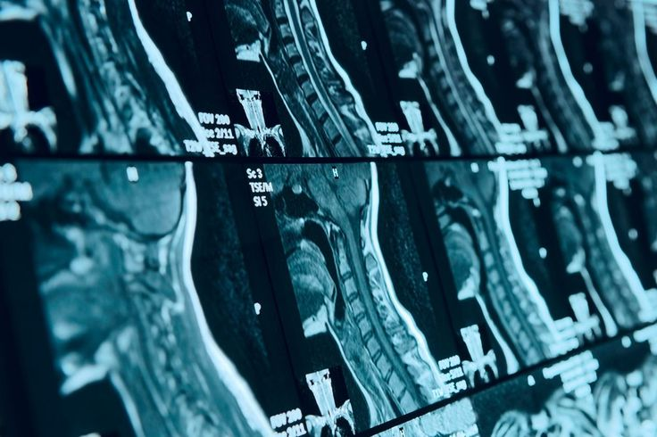 #MSParis2017 – Types of Brain and Spinal Cord Lesions Help Determine if MS Develops, Study Reports