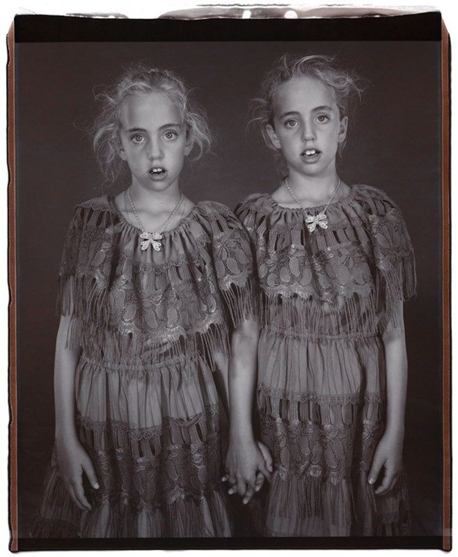 Heather and Kelsey Dietrick, 7 years old, Kelsey older by 66 minutes, Twinsburg, Ohio, 2002