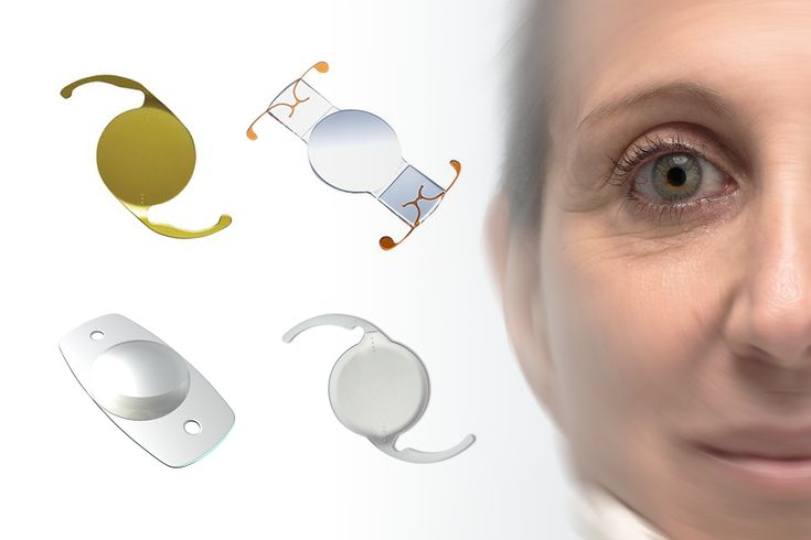 "A Brief Introduction to Intraocular Lenses | During cataract surgery the natural lens of the eye is replaced with a clear synthetic lens.  Learn about the four types of ""intraocular lenses"" (or ""IOLs"")... #intraocular lenses #iol #cataract #Monofocal #Toric #Multifocal #Pseudo-accommodating"