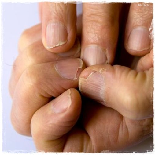 Natural treatments for strong and healthy nails