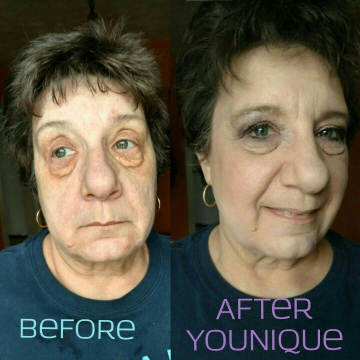 Younique before and after liquid foundation Uplift eye serum liquid foundation glorious face and eye primer  Www.youniqueproducts.com/gracegallion