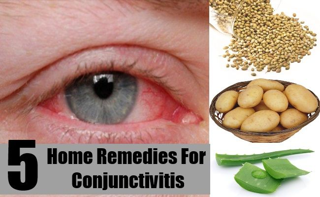 Home-Remedies-For-Conjunctivitis