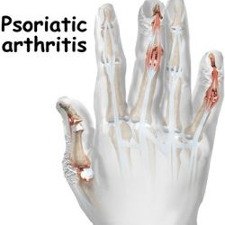 This is worth the read! Wondering if your symptoms link you to psoriatic arthritis..this article will tell you.