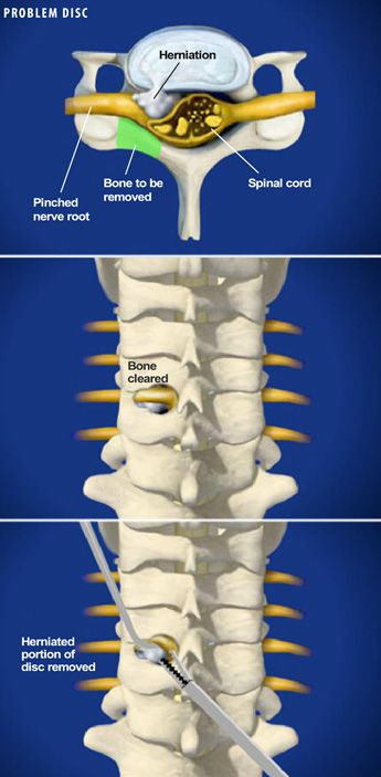 Pin by Patricia DUDDING on BACK POSTURE EXERCISES | Spine ...