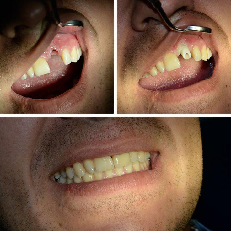 импланты зубов фото