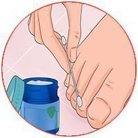 18 способов победить грибок ногтей