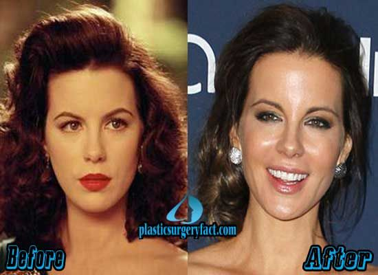 Kate Beckinsale Plastic Surgery Before and After | http://plasticsurgeryfact.com/kate-beckinsale-plastic-surgery-before-and-after/
