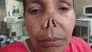 Mutilated Pakistani woman rebuilds her life. A #Pakistani woman whose nose was cut off by her husband 32 years ago says she has been brought back from the dead after surgery which gave her a new nose. Allah Rakhi hid her face for decades after the attack. Orla Guerin went to central Punjab to meet her.