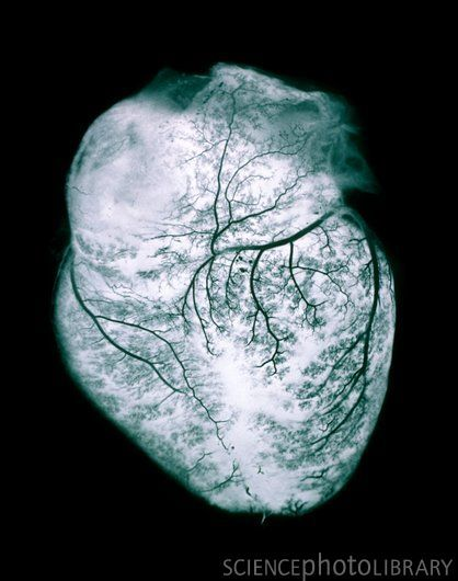 Macro photograph of the human heart, showing veins & arteries