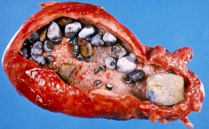 Рак желчного пузыря картинки фото