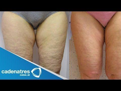 ¿Cómo quitar la celulitis? / ¡AÚN PUEDES ELIMINAR LA CELULITIS! / How to remove cellulite? - YouTube
