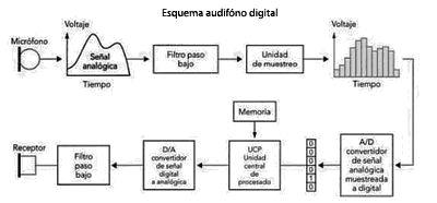Esquema básico de un audífono digital