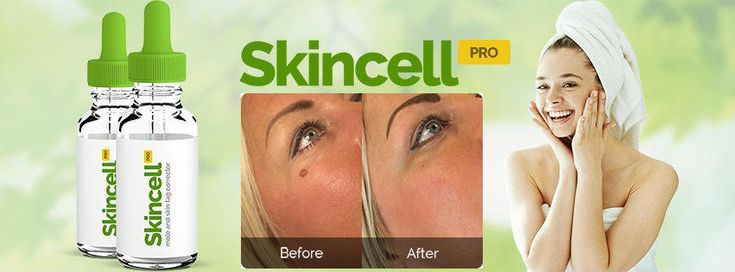 SkinCell Pro Reviews -Best All-Natural Skin Tag Removal & Mole Skincell Pro is changing the way people heal & remove moles & skin tags. Get Your FREE SAMPLE