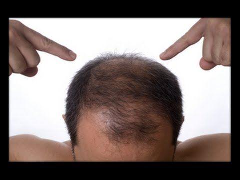 Haarausfall Durch Stress - Medikamente Gegen Haarausfall, Haarausfall Behandlung http://haarausfall-heilung.info-pro.co. Haarausfall wird in zwei Gruppen untergliedert. Im Stadium Effluvium verliert der Kopf übermäßig viele Haare.  Das Stadium Alopezie ist ein so weit fortgeschrittener Haarausfall, dass bereits eine Lichtung auf dem Kopf zu sehen ist.  Der Haarausfall kann erblich bedingt sein. Hierbei ist der Haarfollikel übermäßig empfindlich gegen ein Steroidhormon.