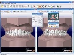 Absolute Analysis on Dental Software Market & Global Foreseen to 2021