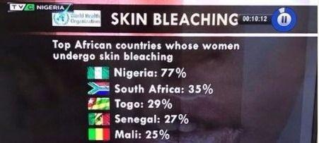 Nigeria tops list of African countries whose women bleach their skin