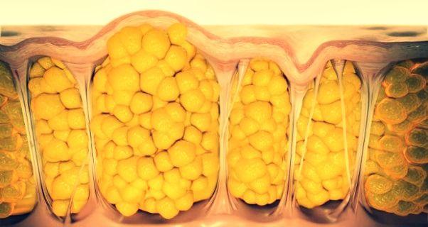 Come eliminare la cellulite da pancia, glutei e cosce in modo naturale e veloce