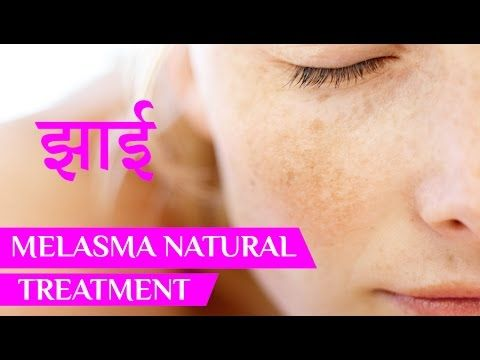 झाई | Melasma | Melasma Treatment | Melasma Cure | Home Remedies | Beaut...