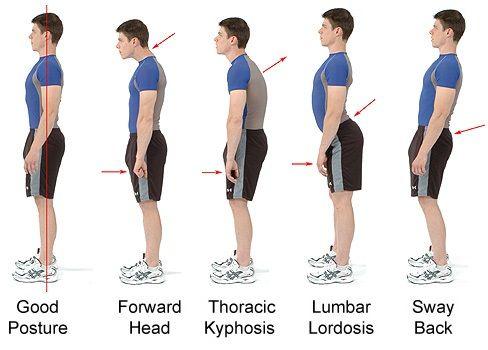 thoracic kyphosis correction exercises pdf