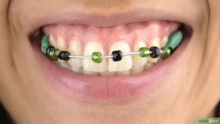 Make fake braces fake braces braces how to make
