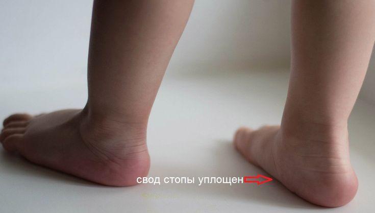 Что надо знать про детскую обувь, плоскостопие и искривление ножек