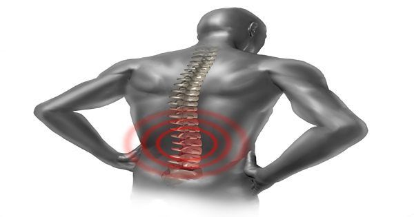 What is a Herniated Disc? Herniation of the nucleus pulposus (HNP) occurs when the nucleus pulposus (gel-like substance) breaks through the anulus fibrosus (tire-like structure) of an intervertebral disc (spinal shock absorber). A herniated disc occurs most often in the lumbar region of the...