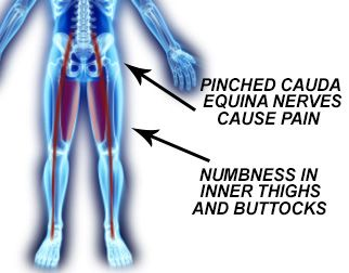 A debilitating ailment caused by other spinal conditions, cauda equina syndrome occurs when the nerves of the cauda equina are pinched. It causes low back pain and numbness in the lower extremities.