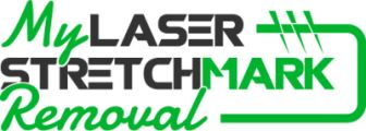Laser Stretch Mark Removal Option: Know What It Is All About