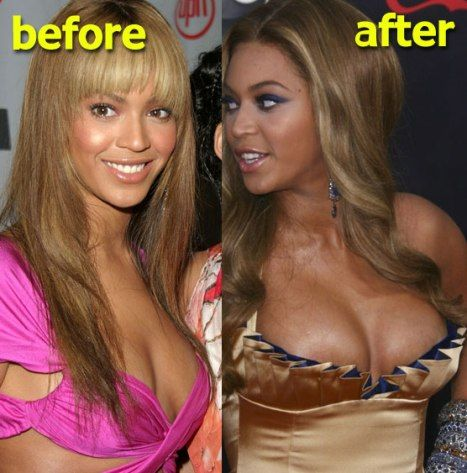 beyonce knowles plastic surgery pictures | Beyonce Knowles Plastic Surgery Nose Job & Breast Implants
