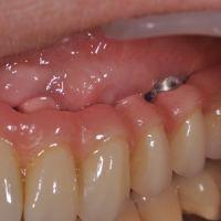 Gestion des troubles de la phonation sous les bridges implantaires