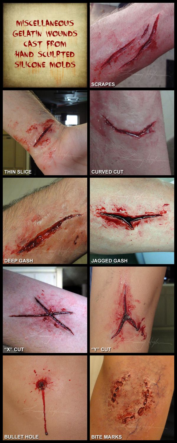 its good to have quide lines incase you struggle with how to shape your wounds