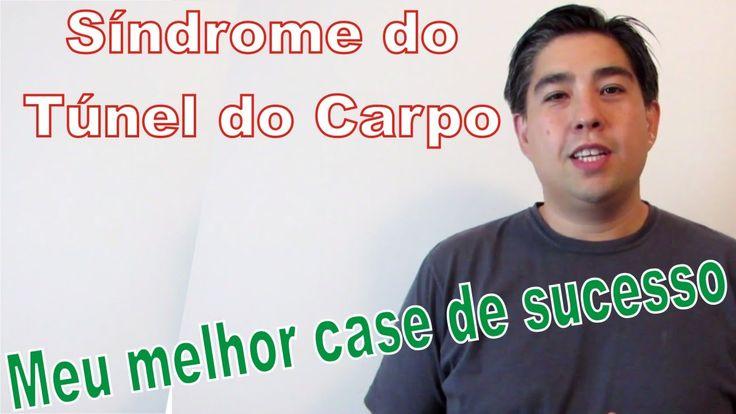 Sindrome do Túnel do Carpo - Tratamento Gratuito e online (com case de s...