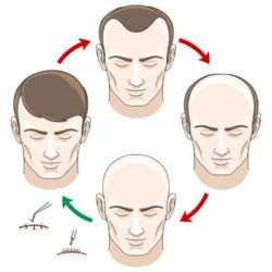 Different Aspects about Hair Transplant Surgery  Hair Transplant refers to a minimally invasive procedure that extracts healthy hair follicles from your head and transplants them on to the area where there is hair thinning or hair loss....  Please visit : http://www.nucosmeticclinic.com/blog/need-know-hair-transplant/