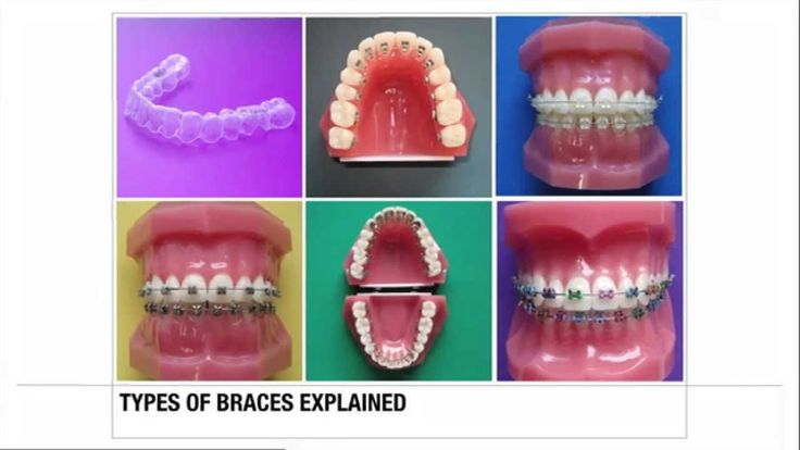 The most common brace types explained.