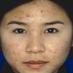 How To Fade Acne Blemishes. very helpful blog.